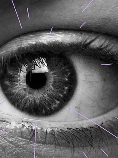 Bilde av et øye med streker rundt som skal illustrere laseroperasjon